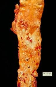 widoczne zmiany miażdżycowe aorty